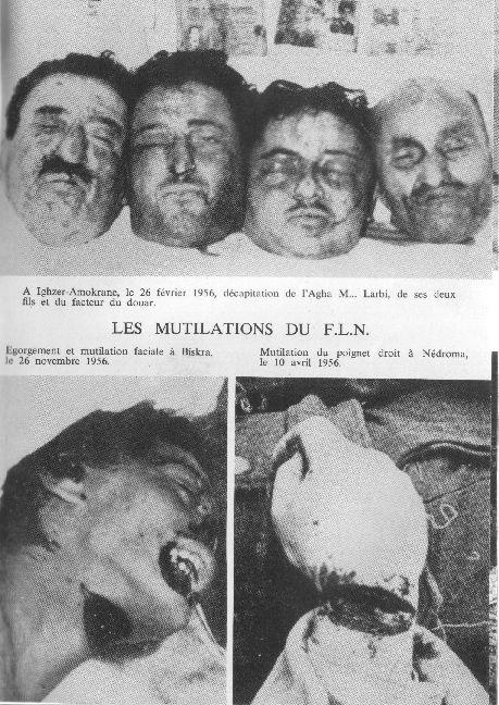 http://www.algerie-francaise.org/tortures/photos/tortures1.jpg